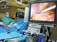 Los riñones son el órgano más trasplantado en Chequia, foto: IKEM