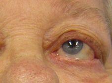 Myasthenia gravis (Foto: James Heilman, MD, CC BY-SA 3.0)