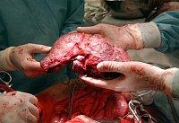 Transplantace jater, ilustrační foto: IKEM