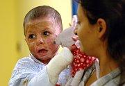 Malá Natálka utrpěla závažné popáleniny na 80 procentech těla, foto: ČTK