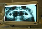 Rentgen zubů (Foto: Jana Šustová)