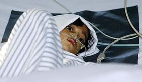 Šestiletá Indonésanka Mutiara Gayatriová vnemocnici vJakartě, kde je hospitalizována sptačí chřipkou, foto: ČTK