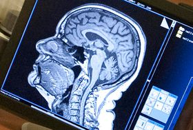 Foto ilustrativa: pennstatenews via Foter.com / CC BY-NC-ND