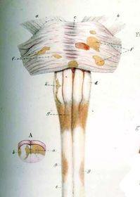 «Шрамы» от рассеянного склероза на спинном мозге. Рисунок шотландского врача Роберта Карсвелла (1793–1857)