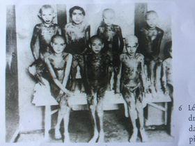 Близнецы, к которым проявил интерес Менгеле и которым удалось пережить муки и голод концлагеря, 1945 год, источник: Post Bellum