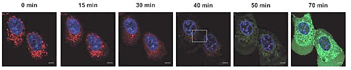 Проникновение митотама в митохондрии раковых клеток (обозначено зеленым цветом), фото: Биотехнологический институт АН Чехии