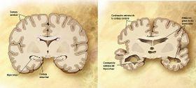 Comparación entre un cerebro normal y un cerebro afectado de Alzheimer