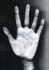 Je sním jedna ruka