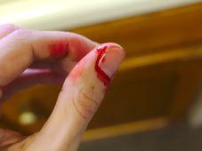 Blut - krev (Foto: Corey Ryan Hanson, Pixabay / CC0)